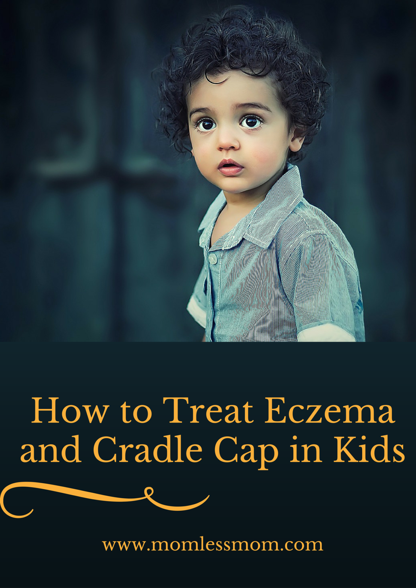 How to Treat Eczema and Cradle Cap in Kids