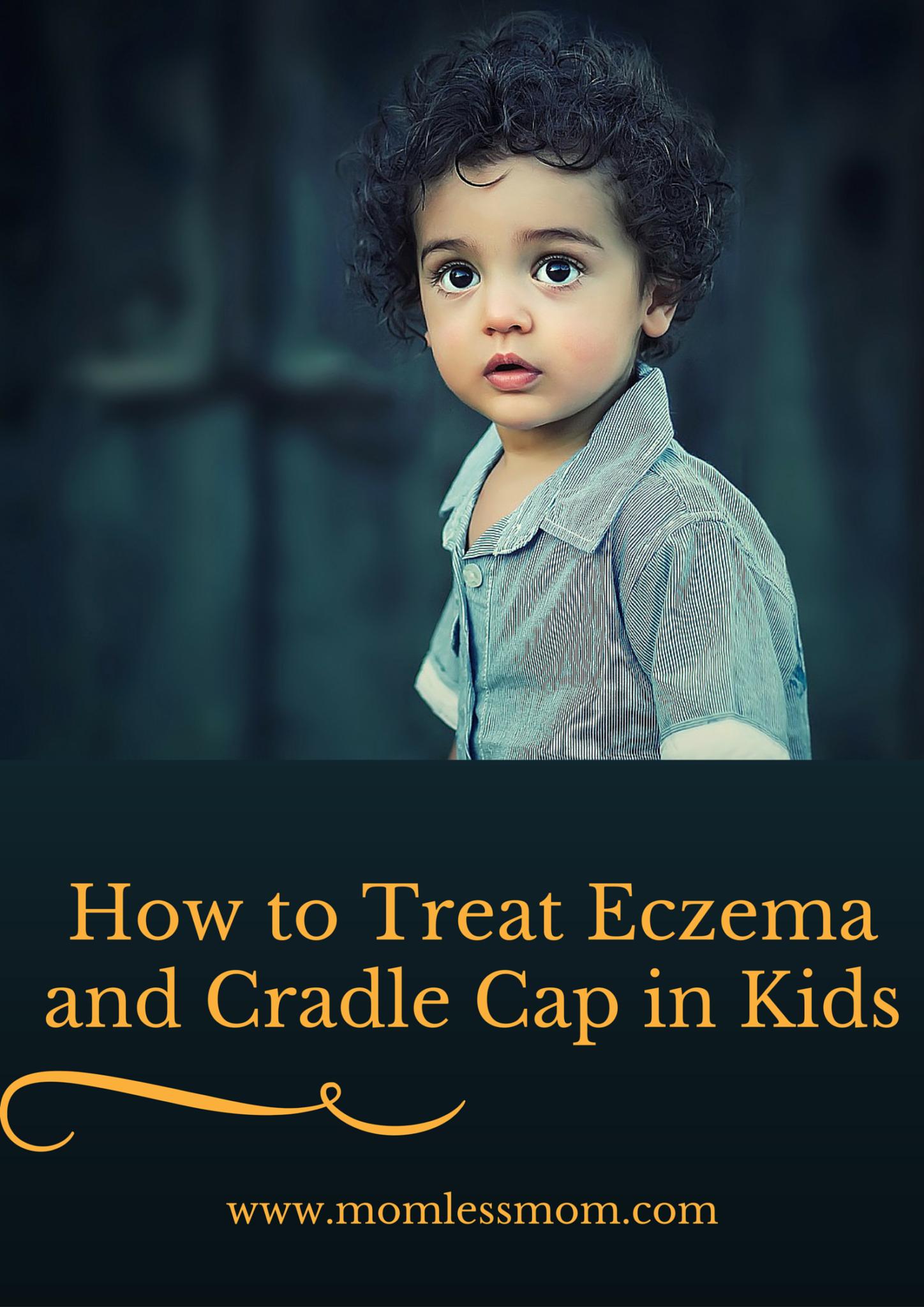 How to Treat Eczema and Cradle Cap in Kids